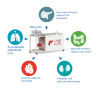 The perfusion machine replaces the functions of various organs in order to keep the donor liver alive outside of the body. (USZ)