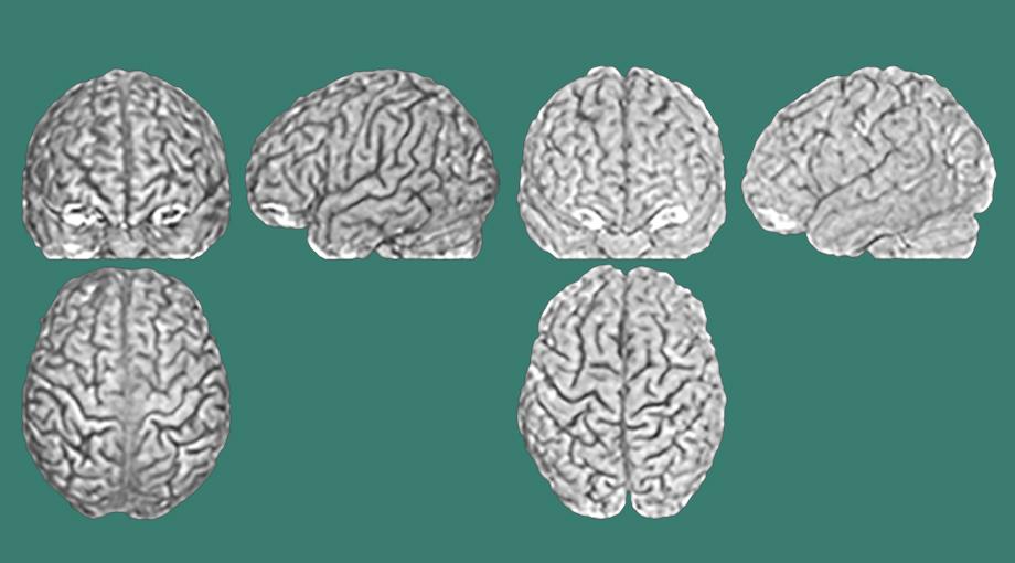 Gehirnanatomie ist bei jedem Menschen einzigartig