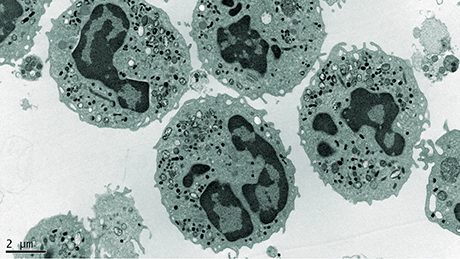 The image shows an electron-microscopical picture of phagocytes. Due to a gene defect, phagocytes of patients with the hereditary immunodeficiency Chronic Granulomatous Disease are unable to kill ingested bacteria and fungi.