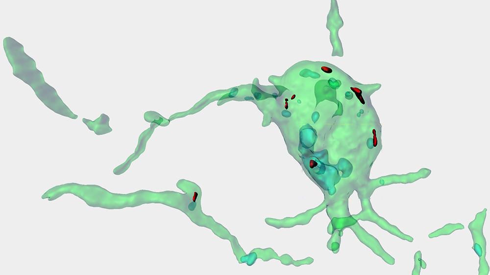 The illustration shows a computer-generated picture of a microglia cell.