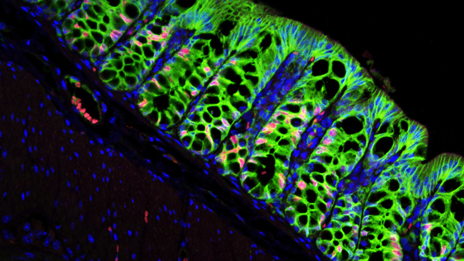 In a mouse with a functioning stem cell niche, the large intestine consists of numerous villi and crypts. (Image: Bahar Degirmenci, UZH)